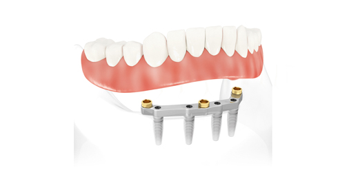 implantátum